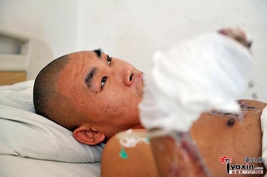 电鱼线漏电掉进水 新疆乌鲁木齐一男子为救人被严重灼伤